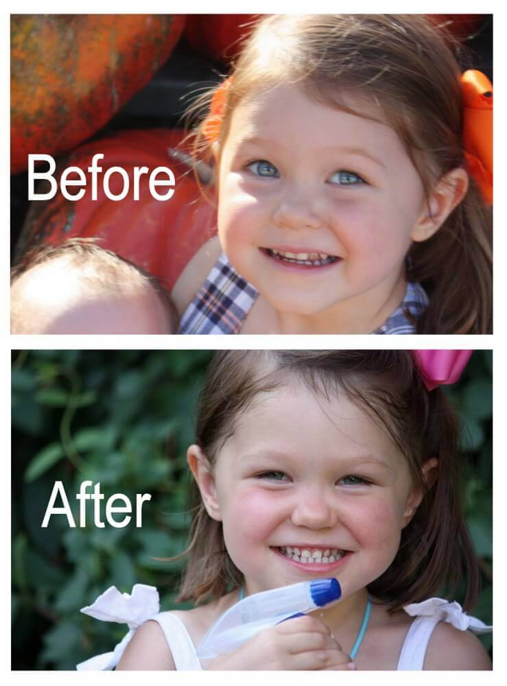 How To Reverse Tooth Decay - My Daughter's Story