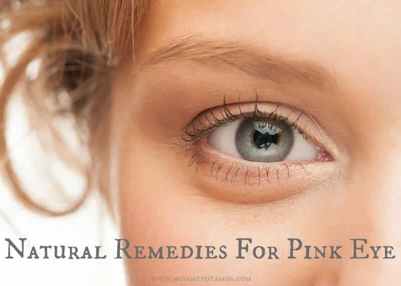 Natural Remedies For Pink Eye
