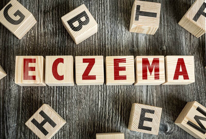eczema-triggers-corn-soy