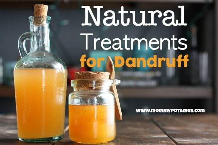 natural-treatments-for-dandruff