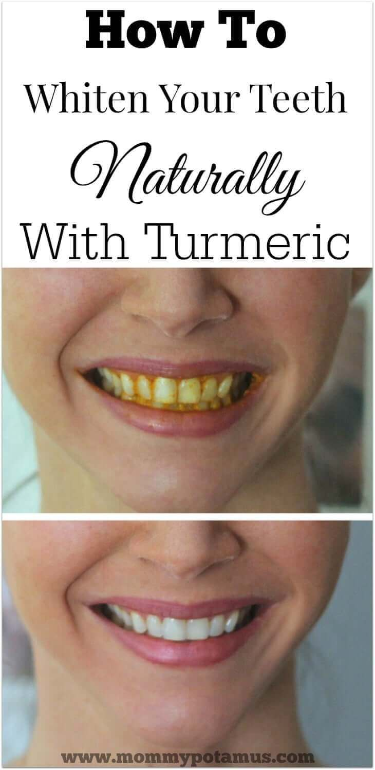 Brushing new toothbrush claims to clean teeth in 6 seconds abc news - How To Whiten Teeth Naturally With Turmeric