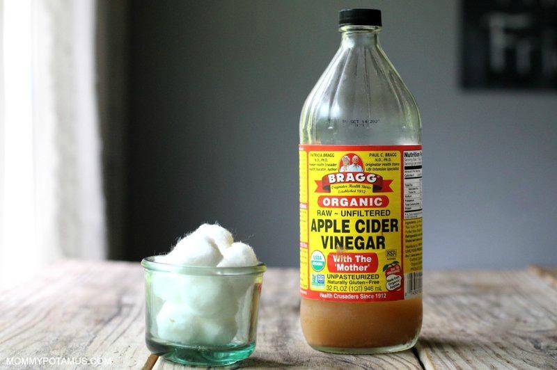 sunburn-remedies-vinegar